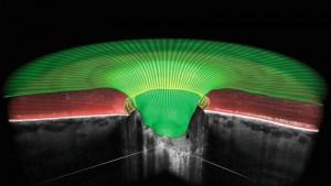 Precisión en la detección y seguimiento de cualquier anomalía en el nervio óptico