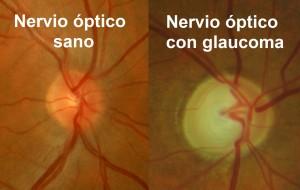 Comparativa fotográfica entre un nervio óptico sano y otro afectado de glaucoma.