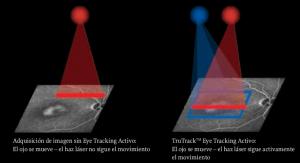 El seguimiento del ojo de la OCT de Spectralis es el más preciso basado en la tecnología de la NASA.