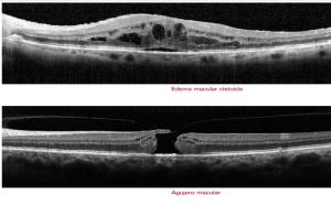 Ejemplos de imágenes de edemas y agujeros maculares realizadas con la OCT de Spectralis