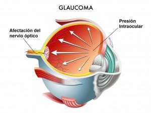 Presión Intraocular afectando al nervio óptico.